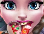 Play Free  Ice Queen Tongue Doctor